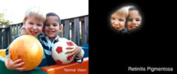 image showing the difference in vision scope for normal vision versus retinitis pigmentosa